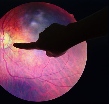 My Eye Health